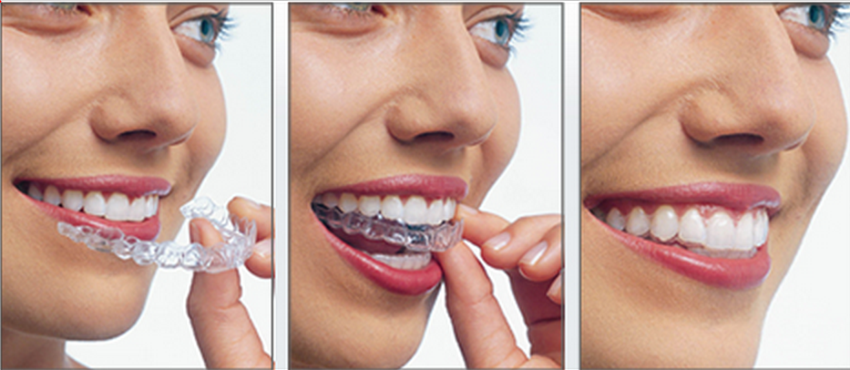 Tipos de Ortodoncia Estética - Clínica Dental Barcelona, Estudi Dental Barcelona