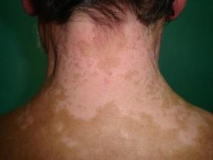 vitiligo_neck_0